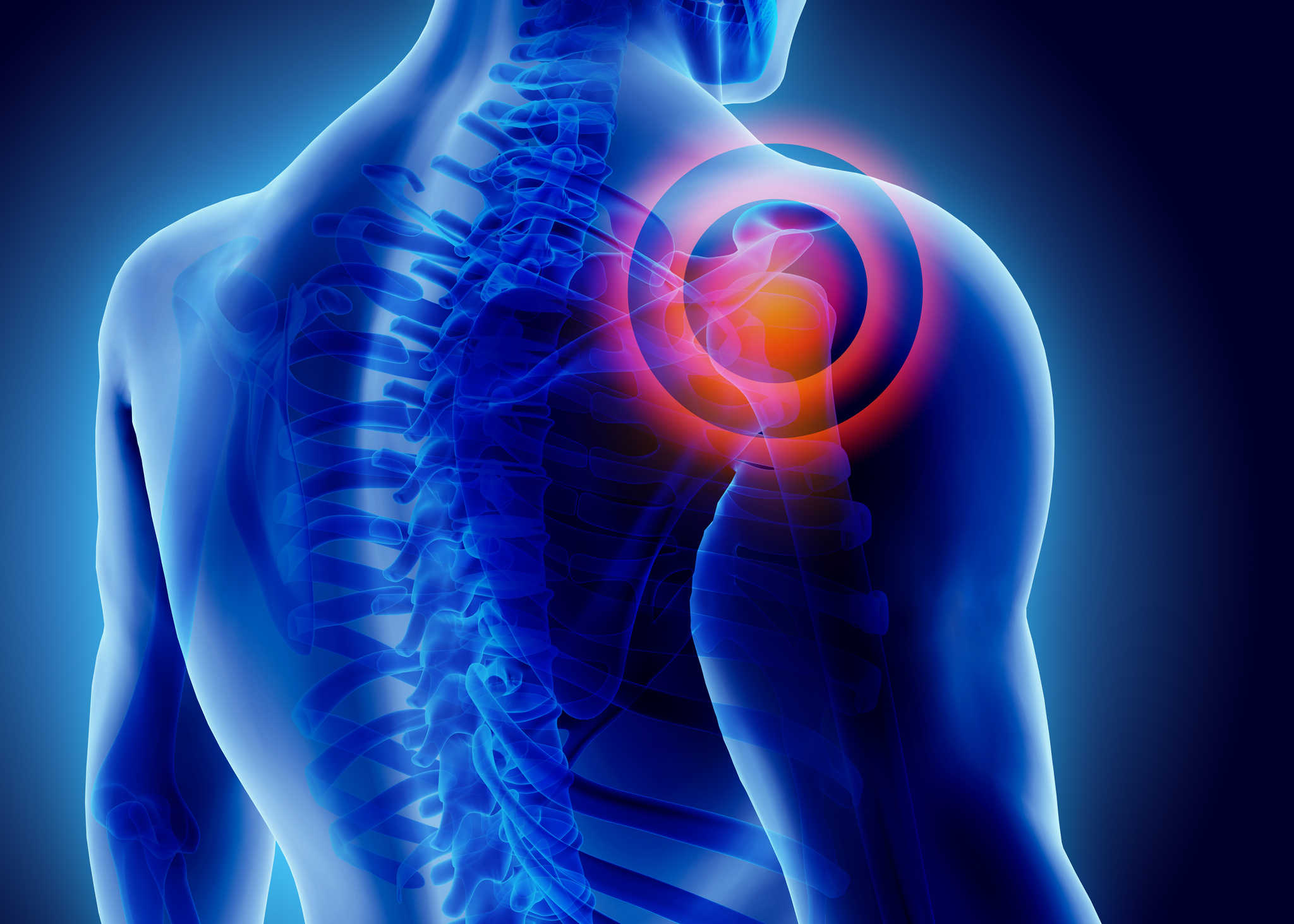 Orthopedic picture of a shoulder x-ray, painful shoulder.